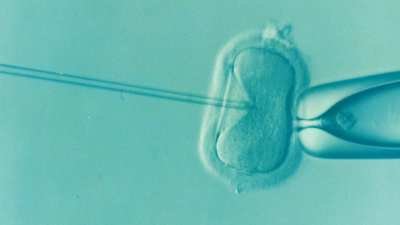 IVF users increases and Dorset funding cannot satisfy demands